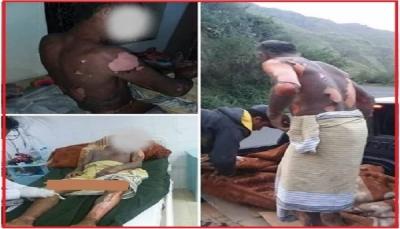 إب: امرأة تحرق زوجها على إثر خلافات أسرية (صورة)