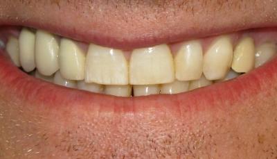 علامات تكشفها أسنانك عن حالتك الصحية