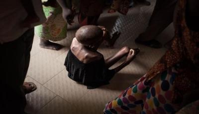في تقريرها السنوي.. اليونيسف: طفل من ثلاثة بالعالم يعاني من سوء التغذية