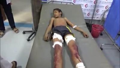 بقناصة وألغام الميليشيا.. مقتل طفل وإصابة آخرون في التحيتا جنوبي الحديدة