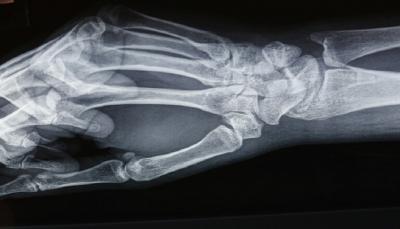 """في حالة طبية نادرة.. """"اختفاء"""" عظام أصابع امرأة"""