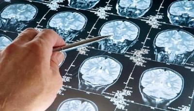 علماء: دائرتان في المخ مصدر الأفكار الانتحارية للإنسان
