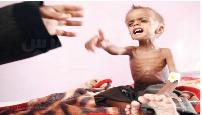 الأمم المتحدة: نصف أطفال اليمن يعانون سوء التغذية المزمن وهناك نقصاً في الاغذية