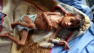"""""""أطفال اليمن"""".. أجساد هزيلة شاهدة على سنوات الحرب الدمار"""