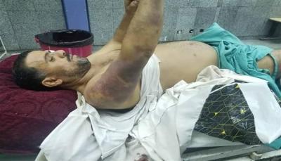 قيادي حوثي يمارس عمليات تعذيب في أحد سجون ريمة
