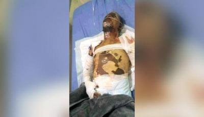 """""""تعرض للإهانة والضرب من عاقل الحارة"""".. وفاة بائع """"الآيس كريم"""" متأثراً بجراحه إثر إحراق نفسه بإب"""