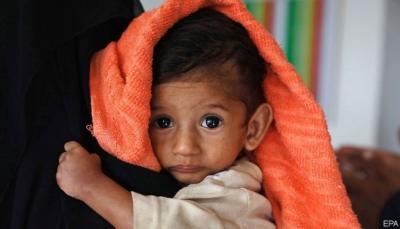 ذا ايكونوميست: حرب اليمن تدور في حلقة مُفرغة والجيران الأثرياء تركوا اليمنيين على شفا المجاعة (ترجمة خاصة)