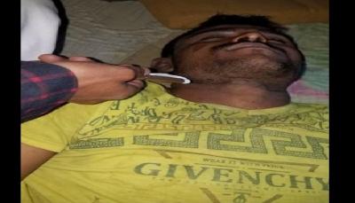 """""""رفض القتال في صفوفها"""".. مليشيا الحوثي تعذّب مواطن حتى الموت في صنعاء"""