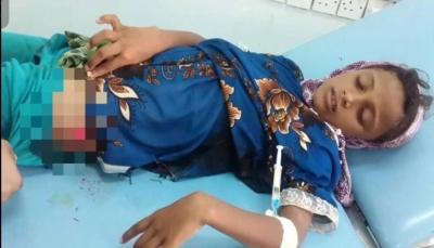 إصابة طفلة برصاص قناص مليشيات الحوثي جنوبي الحديدة