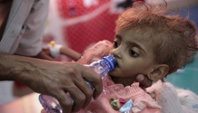 وكالات أممية: اليمن ضمن 4 دول تقترب من حافة المجاعة