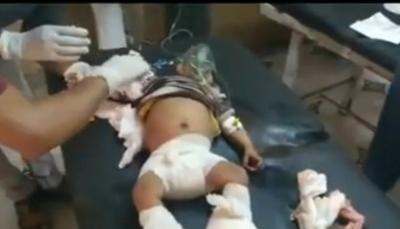 مجزرة جديدة.. مقتل وإصابة 17 مدنيا في قصف مدفعي للحوثيين جنوبي الحديدة