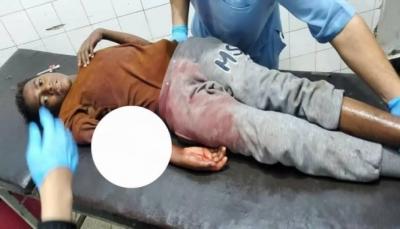 """""""غالبيتهم نساء وأطفال"""".. ارتفاع ضحايا القصف الحوثي على تعز إلى 12 قتيلًا وجريحًا"""