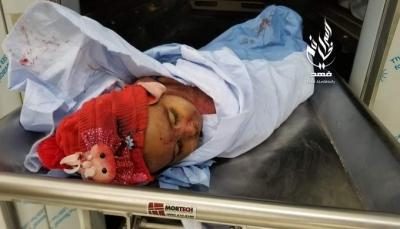 """""""أمر مروع"""".. اليونيسف: مقتل 11 طفلا خلال الثلاث الأيام الماضية باليمن"""