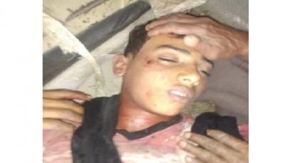 """لحج: مقتل طفل برصاص قناص ميليشيات الحوثي غربي مديرية """"القبيطة"""""""
