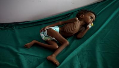 """""""الأطفال الجوعى لا يبكون"""".. صحيفة أمريكية: اليمن عاصمة المعاناة الإنسانية في العالم (ترجمة)"""