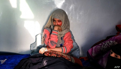 """أحرقني بالأسيد وهو يضحك.. """"العنود"""" شابة يمنية تروي قصة تعذيبها من زوجها"""