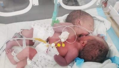 """اليونيسف تعلن نقل """"التوأم الملتصقين"""" من صنعاء إلى الأردن لتلقي الرعاية الطبية"""