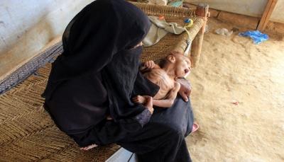 نيويورك تايمز: المجاعة تطارد اليمن مع استمرار الحرب وتراجع المساعدات الخارجية (ترجمة)