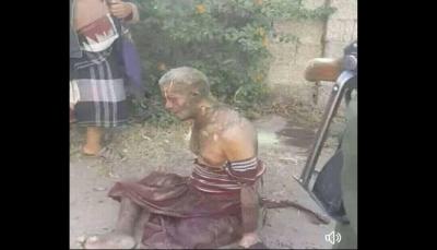 إب.. مواطن يحرق نفسه بعد فشله في إخراج نجله من سجون الحوثيين