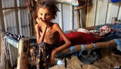الأمم المتحدة تُحذّر من تفاقم أزمة الأمن الغذائي في اليمن جراء تدهور الريال
