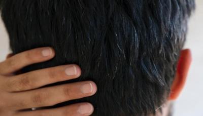 الضغط النفسي يعزز ظهور الشعر الأبيض.. كيف يمكن تجاوز ذلك؟