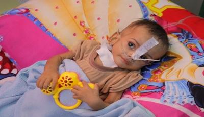 الأوتشا: 7.6 مليون يمني بحاجة لعلاج سوء التغذية أو الوقاية منه