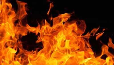 """امرأة في """"إب"""" تشعل النار في جسدها بسبب تعنيف زوجها"""