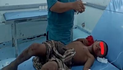 إرهاب مستمر.. إصابة طفل بانفجار لغم زرعه الحوثيون جنوب الحديدة