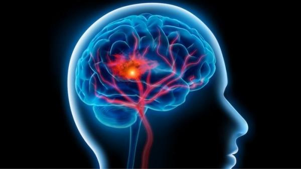 تعرف على سبع علامات للجلطة الدماغية الصامتة