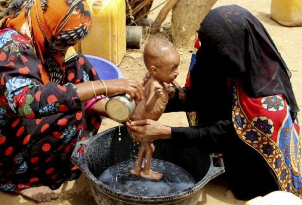 الأمم المتحدة: 16 مليون يمني يعانون من الجوع