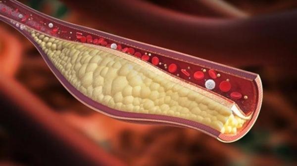 علامات على القدمين تشير لارتفاع نسبة الكوليسترول في الدم