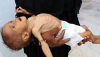 الصحة العالمية تعلن علاج 18 ألف طفل يمني من سوء التغذية الوخيم