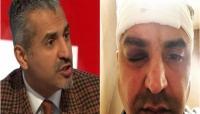 مذيع عربي يتعرض للسب واللكم خلال اعتداء عنصري في لندن