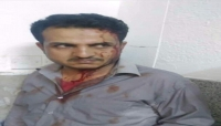"""قيادي حوثي يعتدي على """"ممرض"""" في هيئة مستشفى الثورة بـ""""صنعاء"""""""
