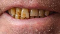 """تعرف كيف تحمي أسنانك من """"الإصفرار""""؟"""