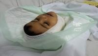 هو الثاني خلال 24 ساعة.. مقتل طفل جراء قذيفة حوثية غربي تعز