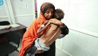 """""""20 مليون شخص بلا أمن غذائي"""".. الأمم المتحدة تحذر من مجاعة جديدة باليمن"""