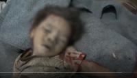تقرير: مقتل وإصابة أكثر من 200 مدنياً بنيران الحوثيين في الحديدة منذ مطلع العام الجاري