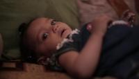 اليونيسف: 22% نسبة ارتفاع حالات سوء التغذية باليمنخلال 2020